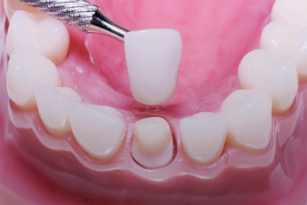 Replace the stunning black line of your new prosthetic teeth with porcelain crowns.